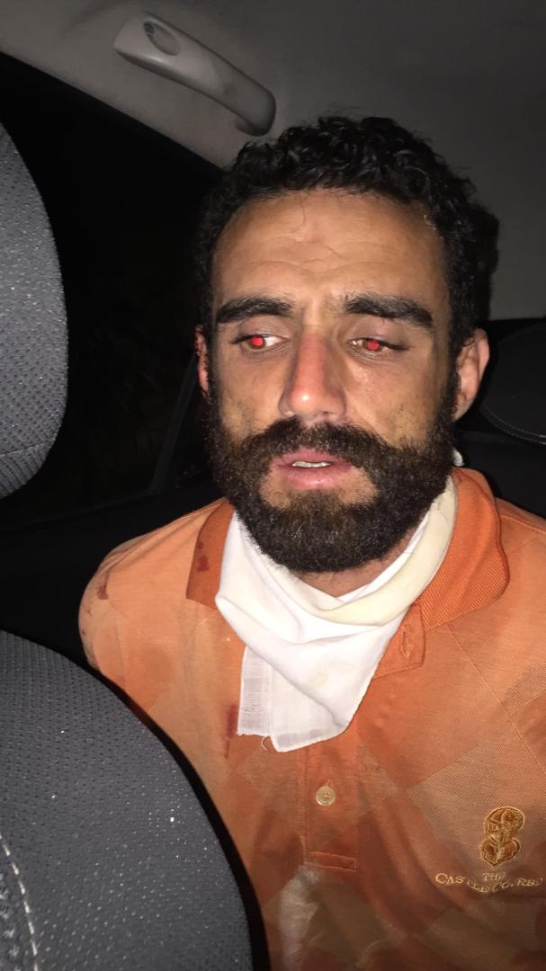 Caracas: Comisiones de Polihatillo detuvieron a hombre que agredió a su ex pareja