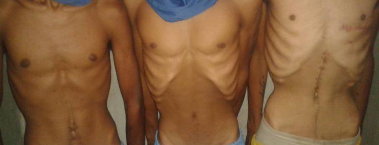 Miranda: Maltratos y alimentación sin proteínas denunciaron reclusos de la cárcel de El Rodeo