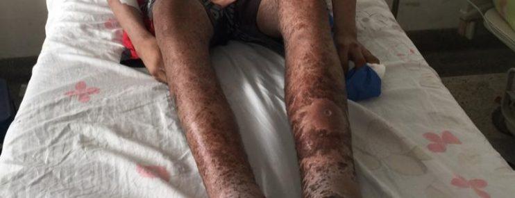 Al menos cinco detenidos están internados en hospital de Ciudad Guayana