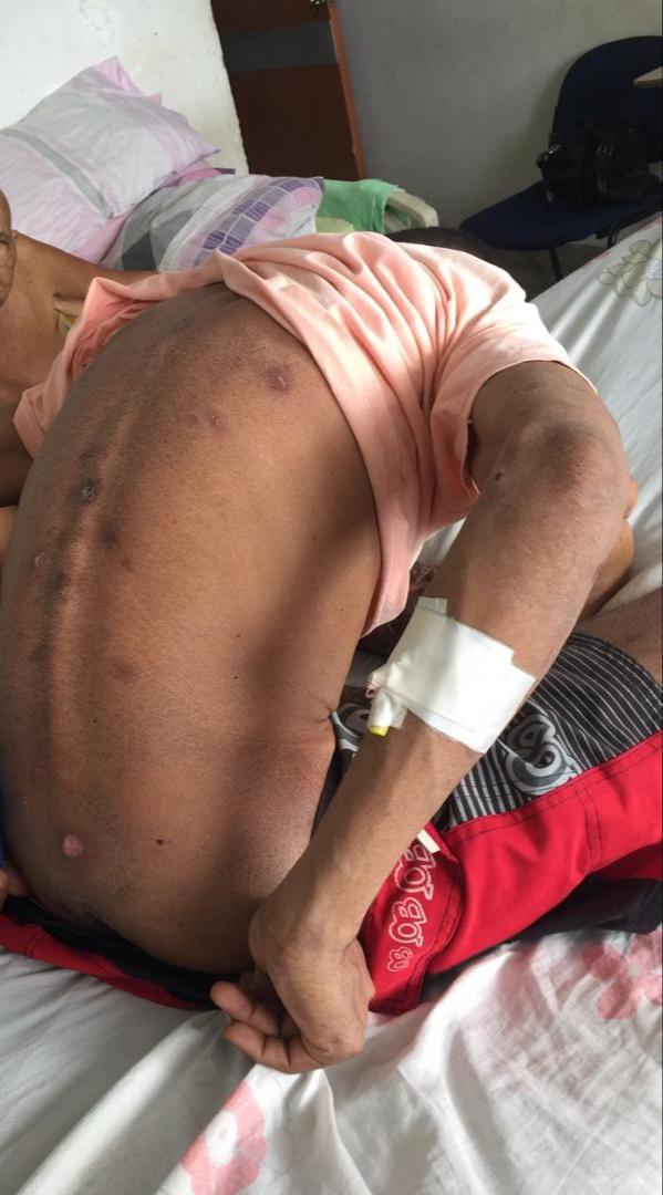 Siete privados de libertad permanecen hospitalizados en Ciudad Guayana