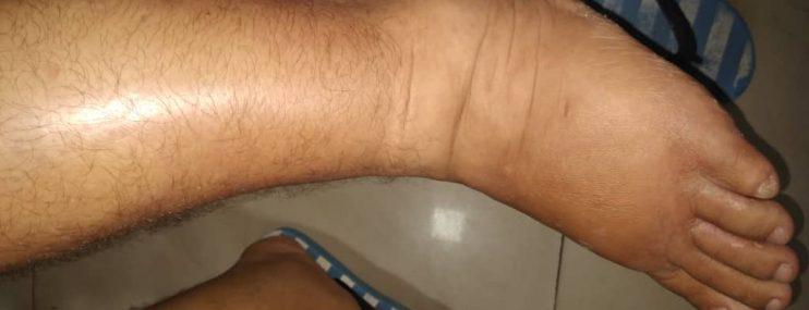 Caracas: Piden medida humanitaria para recluso diabético detenido en el Cicpc