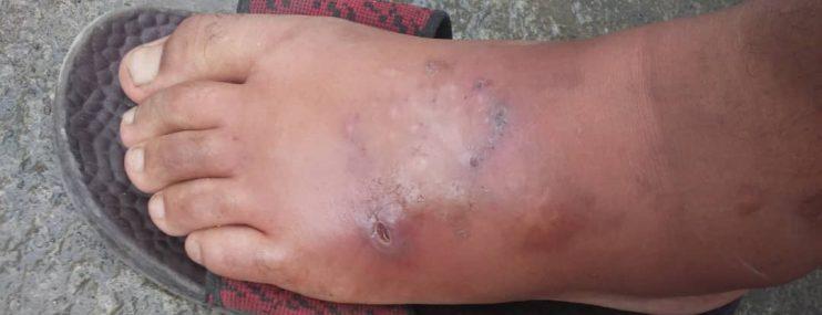 Caracas: Denuncian que en la PNB de San Agustín del Sur no entregan medicamentos completos a presos enfermos