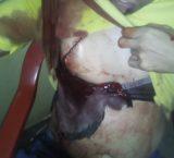 Carabobo: Varios presos del Centro Penitenciario Hombre Nuevo El Libertador resultaron heridos en el motín